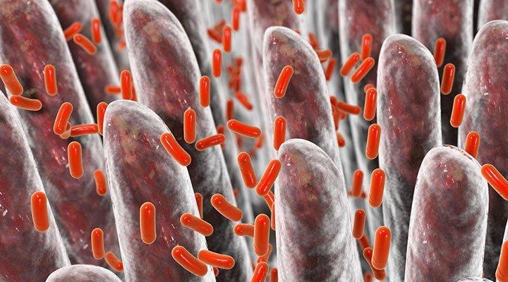 intestino-permeabile-salute-patologie-autoimmuni